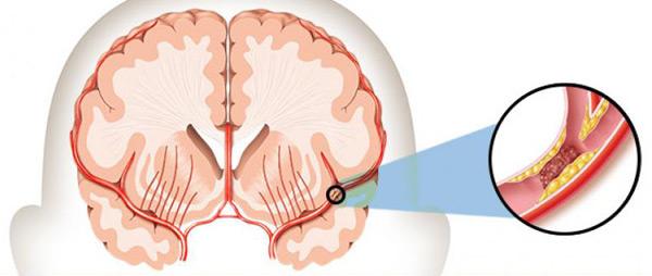 ما هي السكتة الدماغية؟