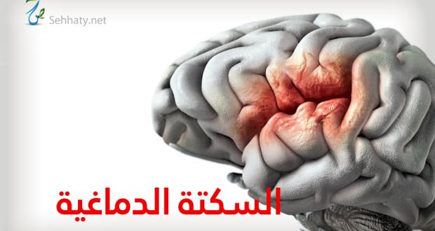 السكتة الدماغية